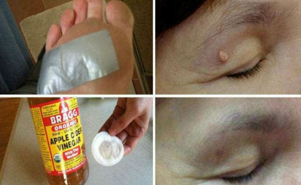Remove Warts, Dark Spots, Blackheads And Skin Tags Quickly